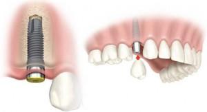implantes-dentales1